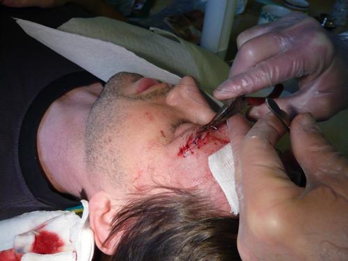 spe-suturing.jpg